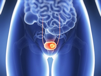 Hyperthermia Treats Bladder Cancer